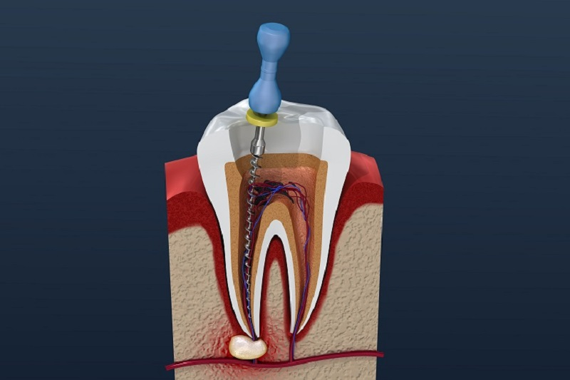 Tình trạng viêm tủy răng