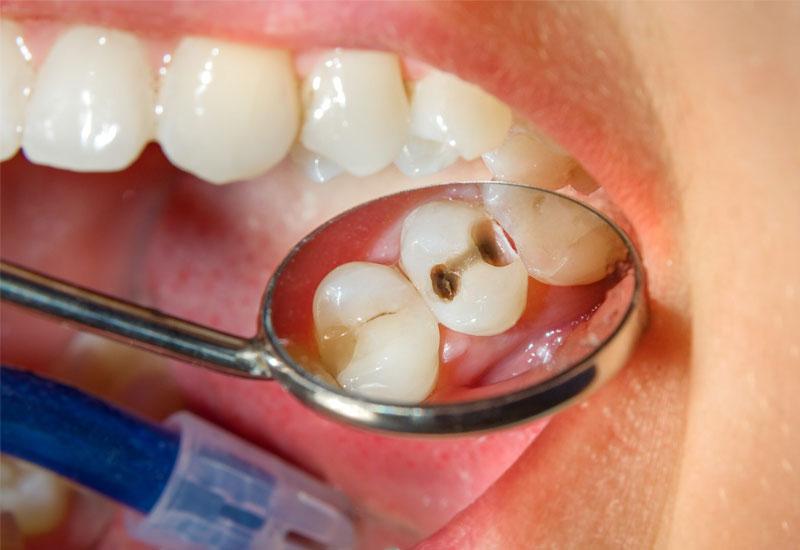 Sâu răng là nguyên nhân phổ biến nhất gây ra đau răng khi nhai thức ăn