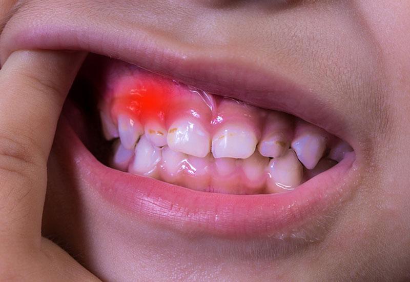 Các bệnh về nướu cũng là một nguyên nhân khiến răng bị đau nhức