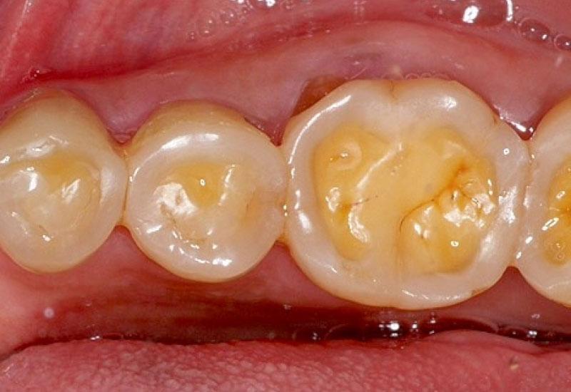 Răng bị mài mòn cũng dẫn đến đau răng khi nhai thức ăn