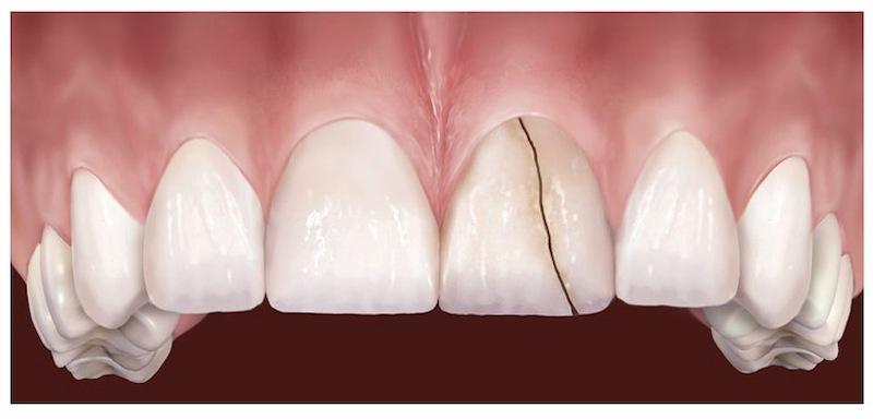 Răng bị nứt do tổn thương cũng là nguyên nhân gây ê buốt răng thường gặp