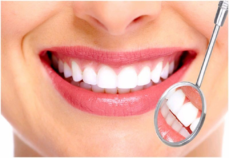 Bọc răng sứ là một trong những giải pháp giúp bảo vệ răng tối ưu hiện nay