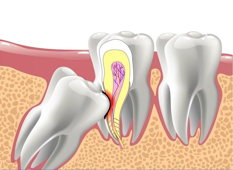 Đau răng khôn tại thời điểm mới mọc là nguyên nhân thường gặp nhất