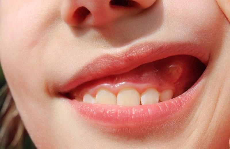 Răng bị áp xe cũng là một nguyên nhân gây đau nhức