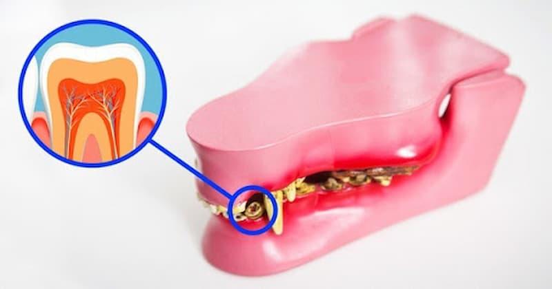 Rất nhiều người kỳ vọng vào công nghệ răng tự mọc sau khi rụng