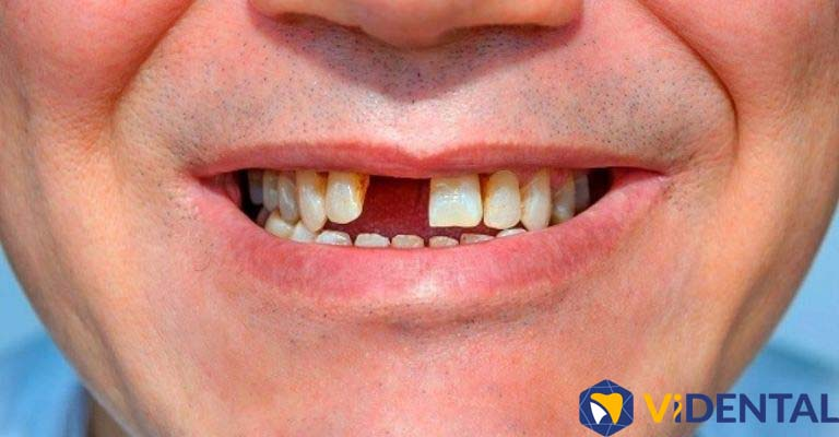 Tình trạng mất răng nếu để kéo dài sẽ ảnh hưởng đến sức khỏe, chức năng ăn nhai kém đi