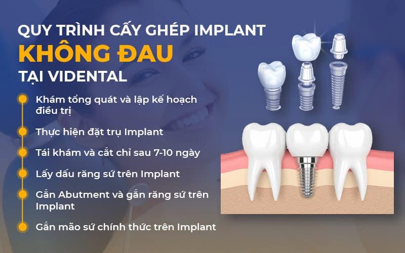 Trồng răng Implant là một trong những dịch vụ nổi bật tại Viện Nha khoa Vidental