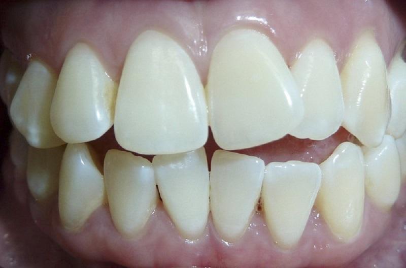 Di truyền là một trong những nguyên nhân khiến bạn có một hàm răng khấp khểnh