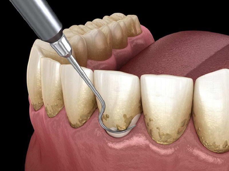 Vôi răng cần được loại bỏ bằng dụng cụ chuyên khoa