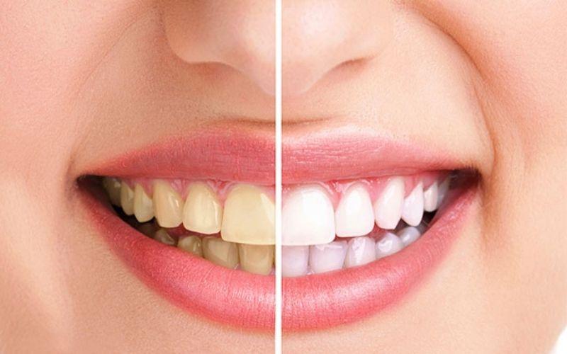 Cao răng là các mảng bám quanh răng do vi khuẩn tích tụ hình thành