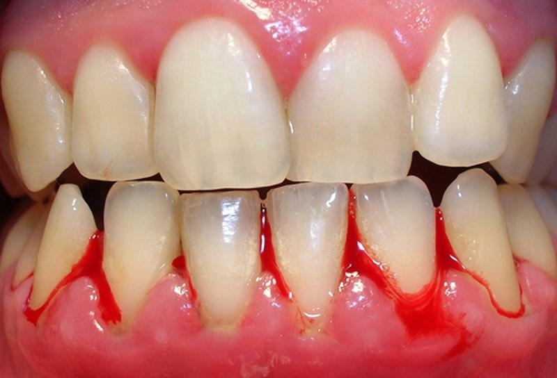 Phần lợi bị chảy máu là biểu hiện nặng của bệnh lý răng miệng