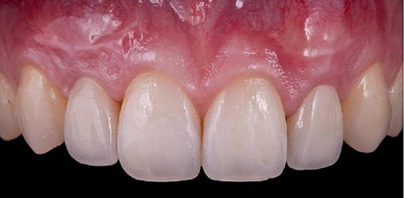 Không phải ai cũng hiểu rõ vai trò của nướu răng là gì