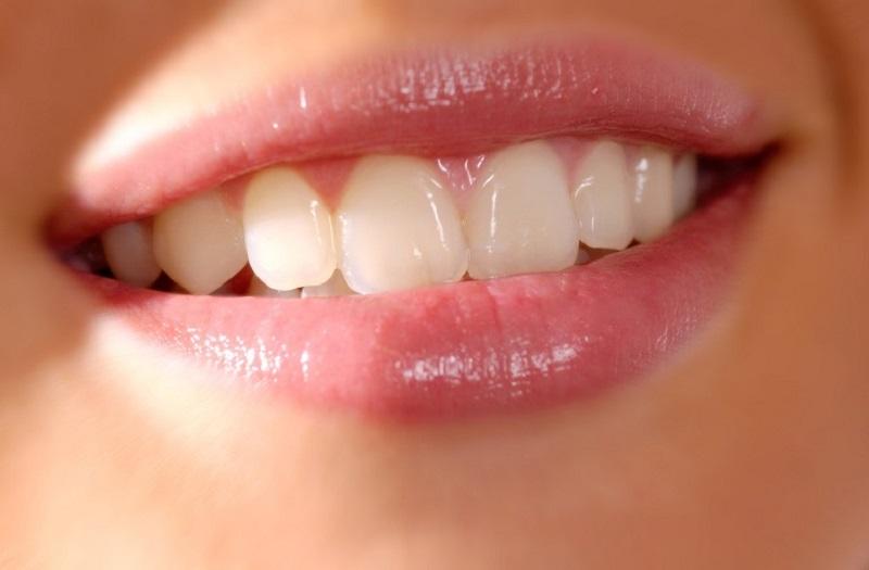 Răng cửa nằm ở vị trí trung tâm của cung hàm