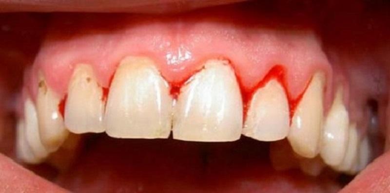 Viêm lợi là bệnh lý răng miệng khá phổ biến