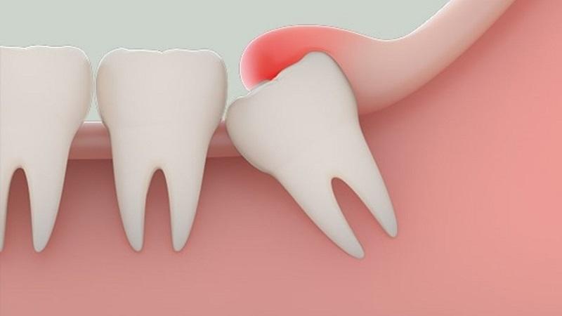 Răng số 8 có nguy cơ mọc lệch cao nhất