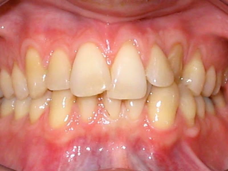 Răng khấp khểnh đem lại nhiều phiền toái trong sinh hoạt hàng ngày
