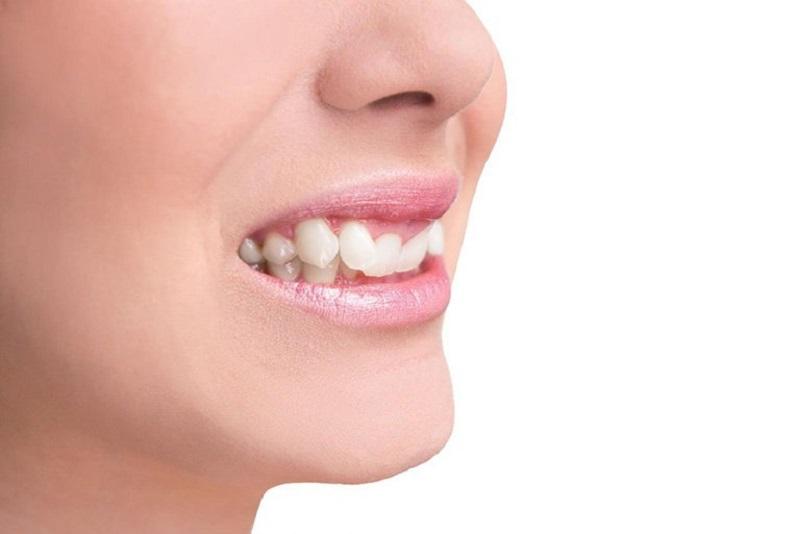 Có nhiều nguyên nhân để bạn sở hữu một chiếc răng này