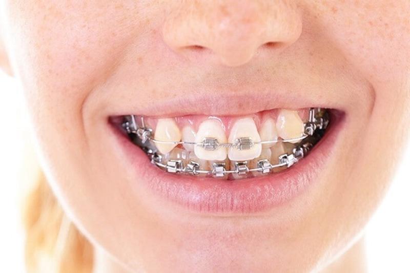 Khi gặp trở ngại từ những chiếc răng này bạn nên niềng răng để tăng tính thẩm mỹ cho khuôn mặt