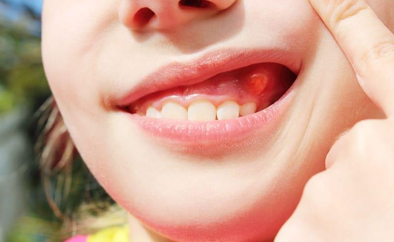 Các nang răng thường bắt nguồn từ nhiễm trùng chân răng