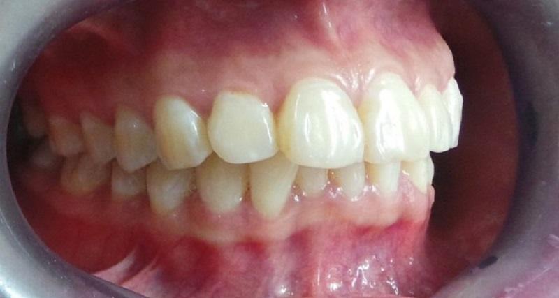 Răng hô gây nhiều bất tiện trong sinh hoạt hàng ngày
