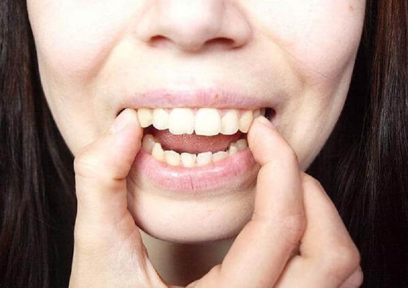 Răng hô hàm trên là hiện tượng thường gặp