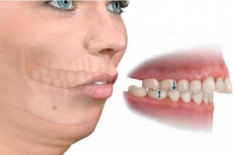 Tình trạng vẩu có thể do cấu trúc xương hàm