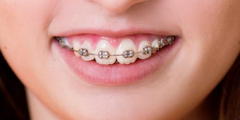 Niềng răng giúp tăng tính thẩm mỹ cho hàm răng
