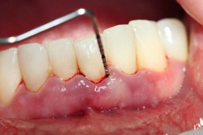 Viêm lợi - OP bệnh răng miệng thường gặp nhất