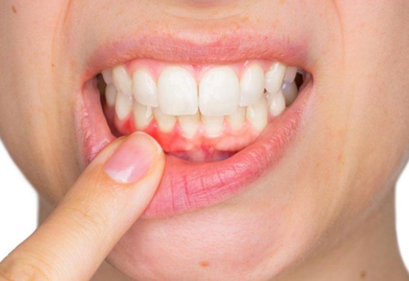 Chỉ định dùng trong điều trị các vấn đề răng miệng