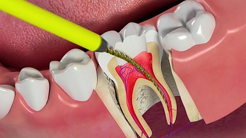 Tủy được bao bọc bởi lớp ngà răng và men răng