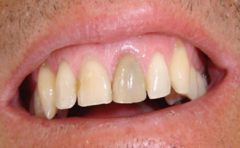 Hoại tử khiến răng bị xỉn màu, mất đi chức năng ban đầu
