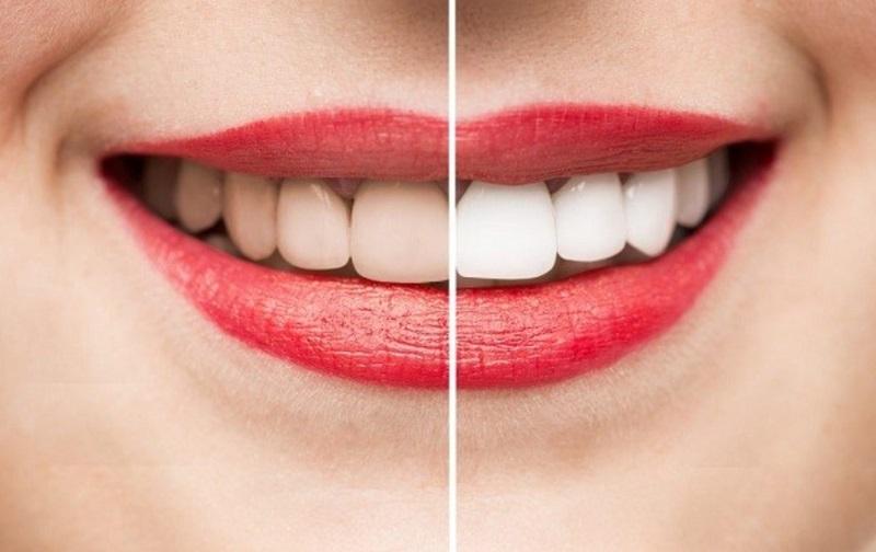 Tẩy trắng răng là phương pháp thẩm mỹ nha khoa phổ biến hiện nay