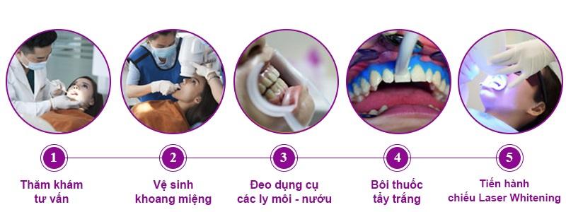 Quy trình tiêu chuẩn tại nha khoa gồm 5 bước