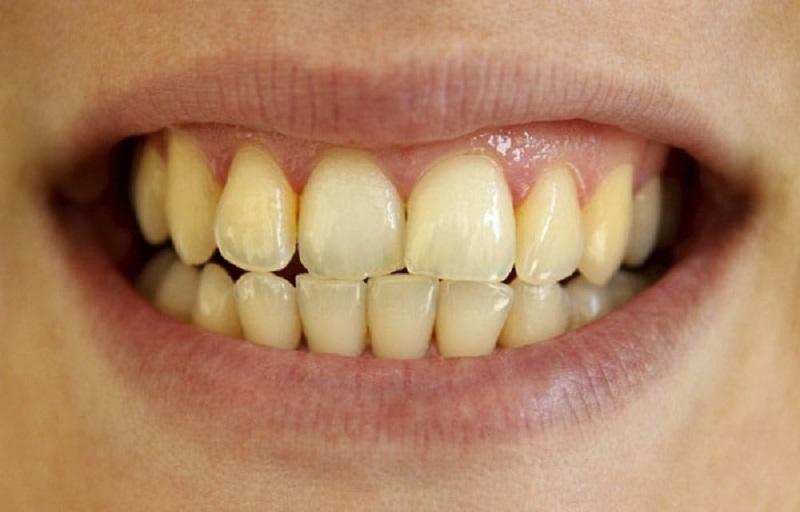 Đối tượng có men răng bị ố vàng nên thực hiện làm trắng răng